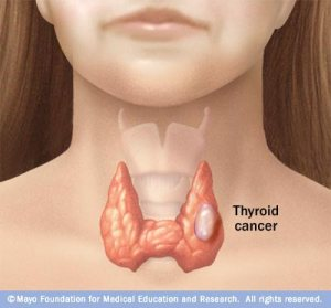 c7_thyroid_cancer